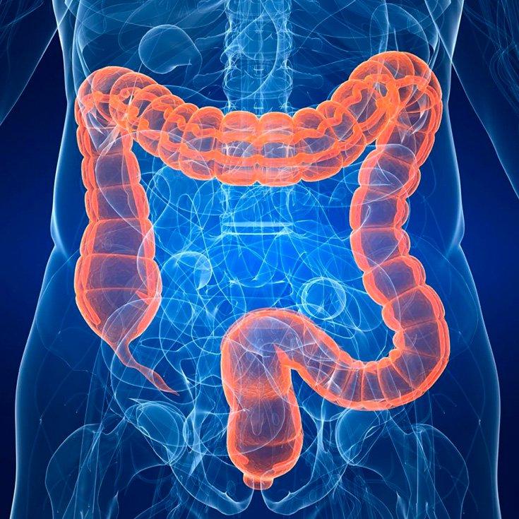 Colitis Ulcerativa: Causas, Síntomas Y Tratamiento   La Guía de las Vitaminas