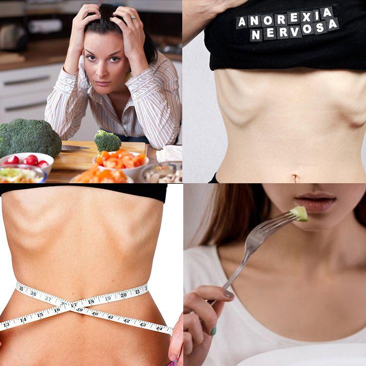 Trastornos Alimenticios: Síntomas, Signos, Causas, Tipos Y Tratamiento   La Guía de las Vitaminas